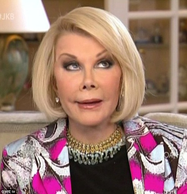 joan rivers eyelift eyeroll